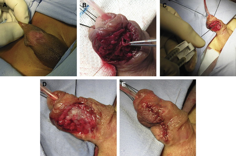 Single Donor Fibrin Sealant For Repair Of Urethrocutaneous